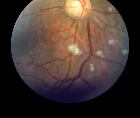 Lupus Retina